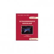 Ultrasonografie vasculara (Sorin M. Dudea, Radu I. Badea)