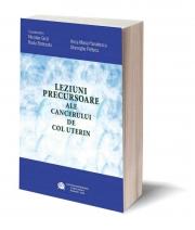 Leziuni precursoare ale cancerului de col uterin - Nicolae Gica, Ana Maria Panaitescu, Radu Botezatu, Gheorghe Peltecu