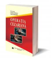 Operatia cezariana - Cringu Ionescu, Mihai Dimitriu