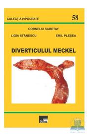 Diverticulul Meckel - Corneliu Sabetay, Ligia Stanescu, Emil Plesea