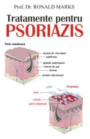 Tratamente pentru psoriazis - Prof. dr. Ronald Marks